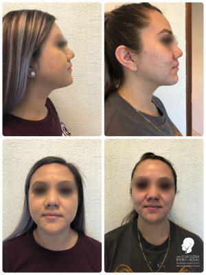 bichectomia y liposucción de papada